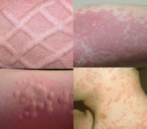 Через сколько дней проходит аллергическая сыпь