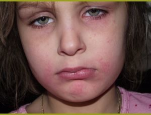 Арахис аллергия