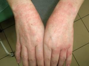 Покраснение между пальцами рук : с чем оно связано