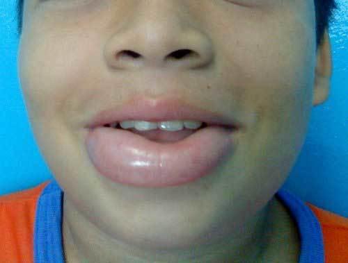 Аллергия на анестезию