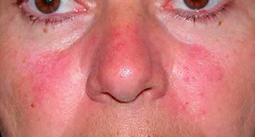 Аллергия красные пятна чешутся