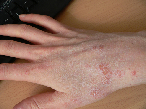 Аллергия на шеллак что делать