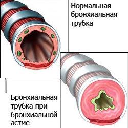 Как снять приступ бронхиальной астмы