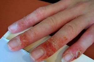 Почему после шеллака чешутся пальцы и опухают