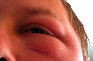 Аллергия на сладкое на лице