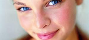 Аллергическое покраснение кожи