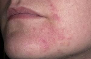 Диета при аллергии на полынь