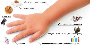 Ларингит аллергический симптомы