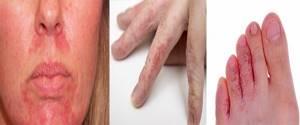 Аллергия на малину симптомы