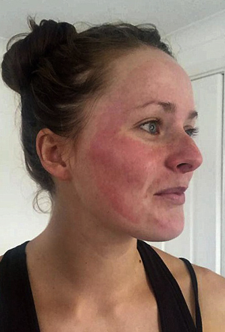 Аллергия на маску для лица