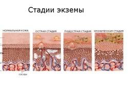 Периоральный дерматит что это
