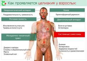 Дерматит дюринга лечение