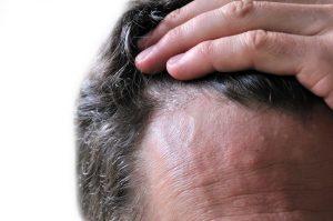 Экзема на голове в волосах