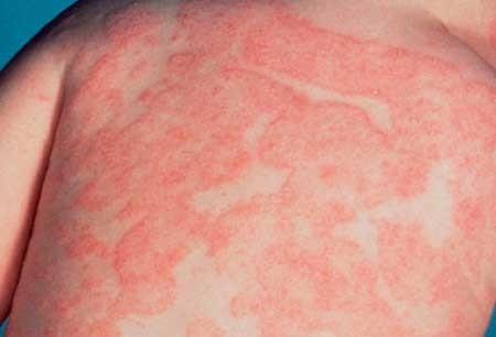 Аллергия на бананы у детей