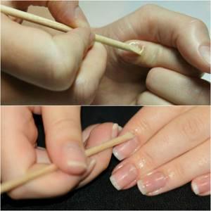 Аллергия на наращивание ногтей