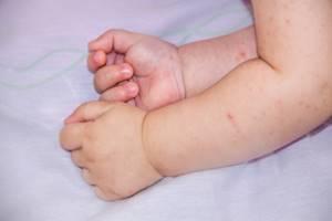 Высыпание на руках у ребенка
