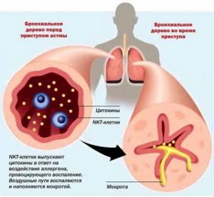 Ингалятор астма
