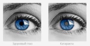 Зуд глаза