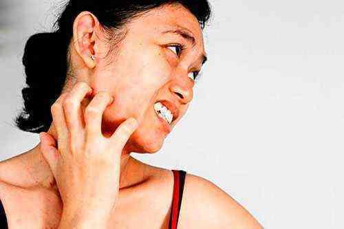 Аллергия на лебеду лечение