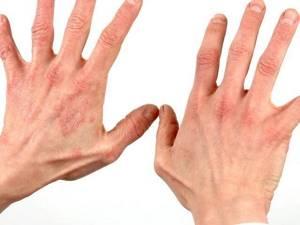 Сухой дерматит на руках