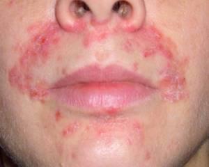 Лечение контактного дерматита на лице