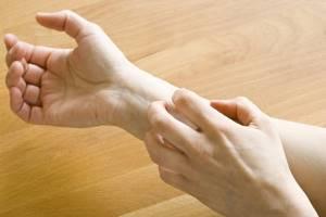 Аллергия на арбуз симптомы