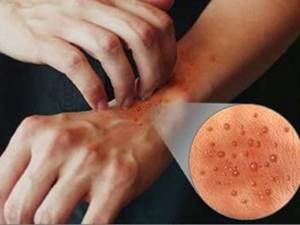 Генерализованный зудящий дерматит