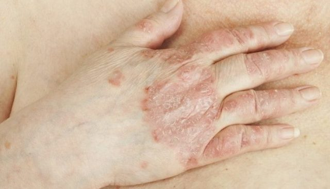 Псориаз вульгарный лечение