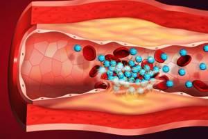 Внутривенно хлористый кальций