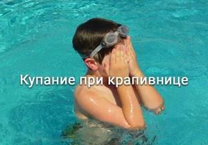 Можно ли купаться при крапивнице
