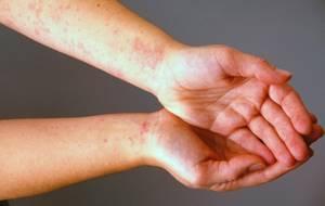 Аллергия на творог
