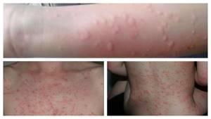 Как избавиться от аллергии на коже