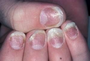 Почему после шеллака чешутся пальцы