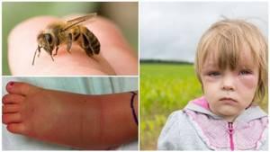 Аллергия как укусы насекомых