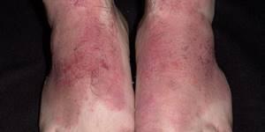 Инфекционный дерматит на ногах