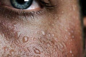 Аллергия от пота