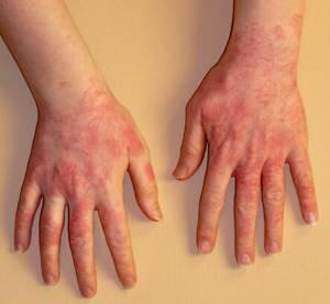 Крапивница лечение симптомы