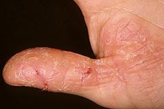 Как лечить экзему на пальцах рук