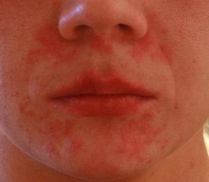 Аллергия на шерсть как проявляется
