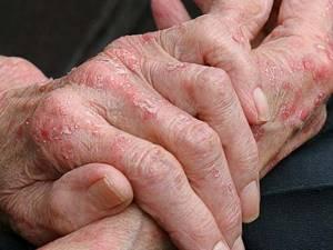 Экзема рук лечение