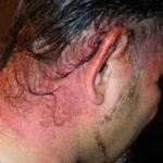 Как проявляется аллергия на краску для волос