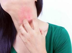 Витамин с аллергия