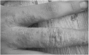 Как избавиться от аллергической сыпи