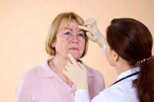 Сыпь при аллергии у взрослых