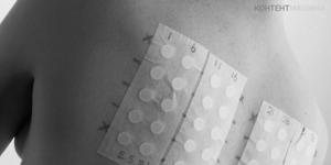 Аллергия на сладкое у взрослых лечение
