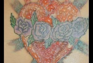 Аллергия после татуировки