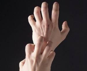 Мазь противоаллергическая для кожи