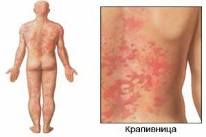 Как проявляется аллергия на мед у взрослых