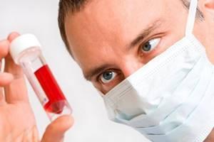 Сдать анализы на аллергию