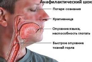 Аллергический отек лица